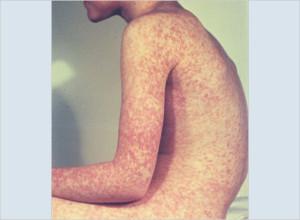 measles-22-lg